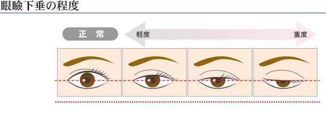 眼瞼下垂の図解