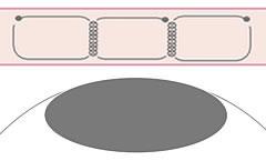 フォーエバー二重術の説明図