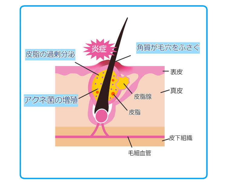 ニキビ肌の構造断面図