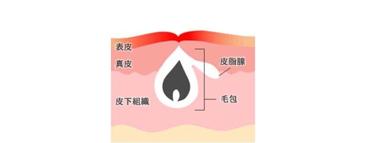 ニキビ跡の赤みのイメージ