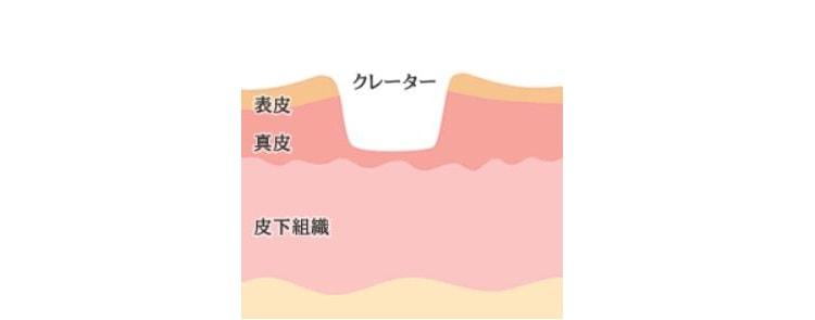 ニキビ跡 クレーターのイメージ