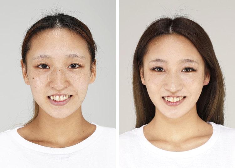 山田さん 整形前と整形後の顔
